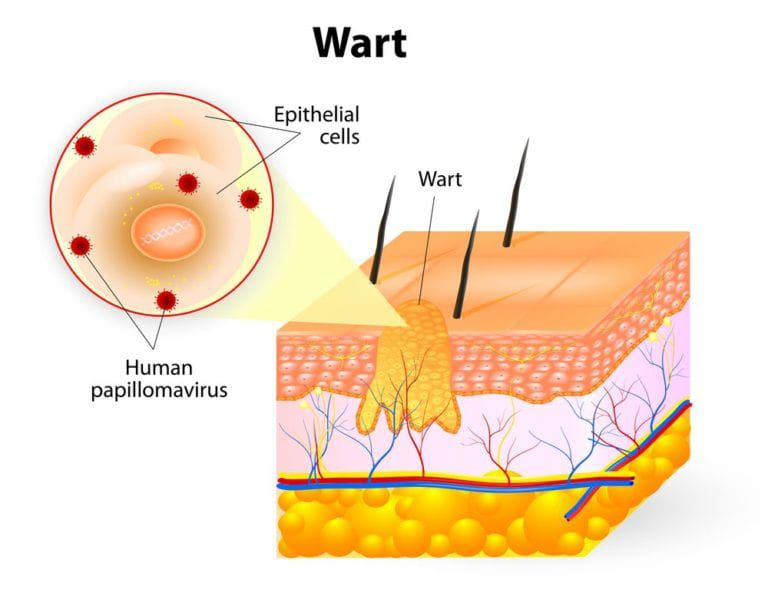 Diagram illustrating layers of the skin and which area a wart occupies