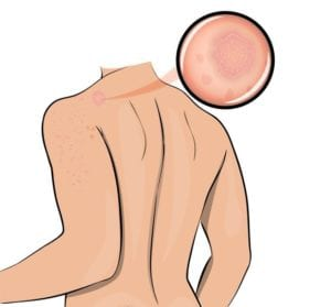 Illustration of a person with Hives on left shoulder