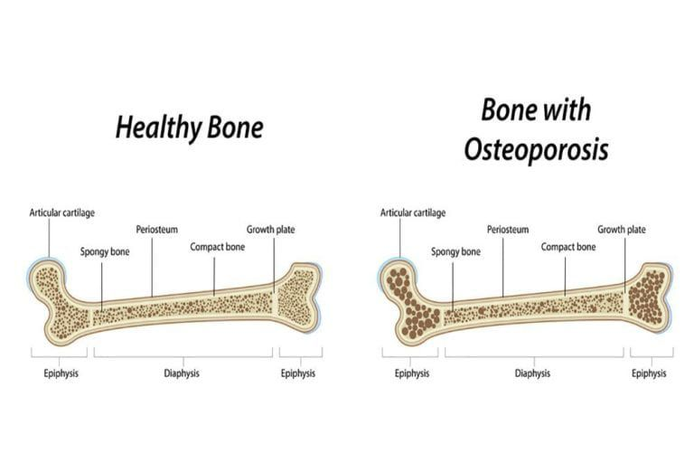 Diagram Illustrating what Osteoporosis is