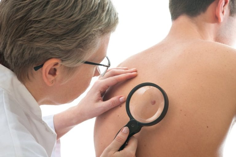 Doctor Examining a spot on a patients back with a magnifying glass
