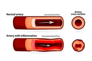 Diagram comparing a normal artery to an enflamed artery