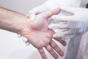 Doctor Examines hand for loss of flexibility from Systemic Sclerosis